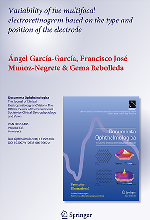 La Tesis del Dr. Ángel García sobre Electrorretinograma Multifocal y el uso del electrodo adecuado
