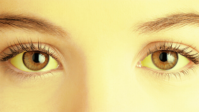 Qué debes saber sobre la protección de los ojos
